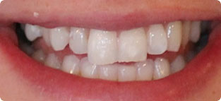 6 Month Smiles Cost - Orthodontist Hampshire, Ringwood