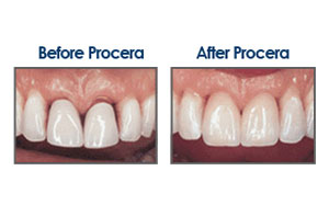 Cerec Treatments