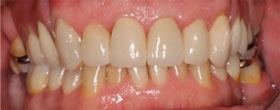 Discoloured Teeth