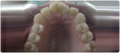 Crowded Fractured Smile Correction