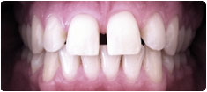 Gappy Discoloured Smile Correction
