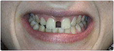 Gappy smile correction using Invisalign