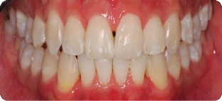 Invisalign Before And After Gap